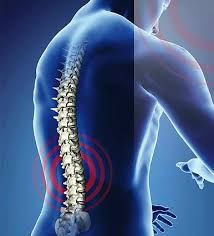 Global Spine Surgery Devices Market Research Report 2019: By